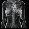 CELE 10 MITURI ALE CANCERULUI DE SAN