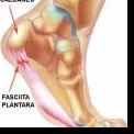 FASCIITA PLANTARA - PROBLEME CU CALCAIUL